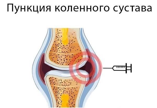 Боль в колене при вставании на колено: лечение в москве