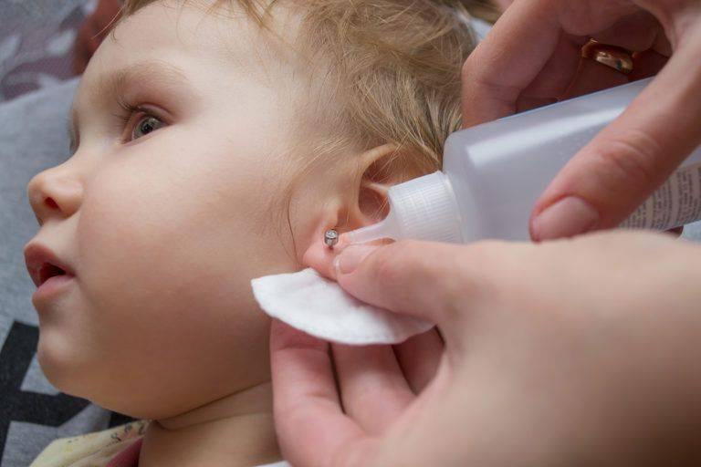 Чем обработать уши после прокалывания если гноятся    загноилось ушко под сережкой у ребенка