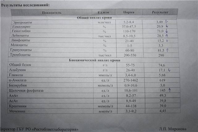 Болезни печени: щелочная фосфатаза (фосфомоноэстераза 1-3.1.3.1)