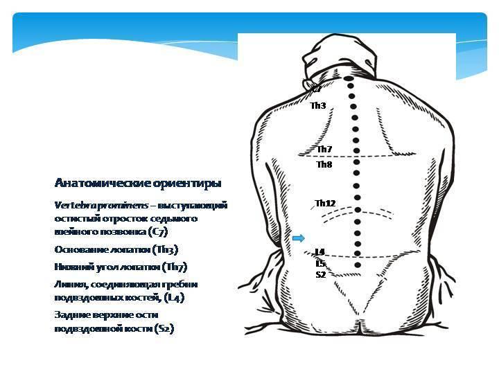 Эпидуральная и спинальная анестезия в родах. плюсы и минусы