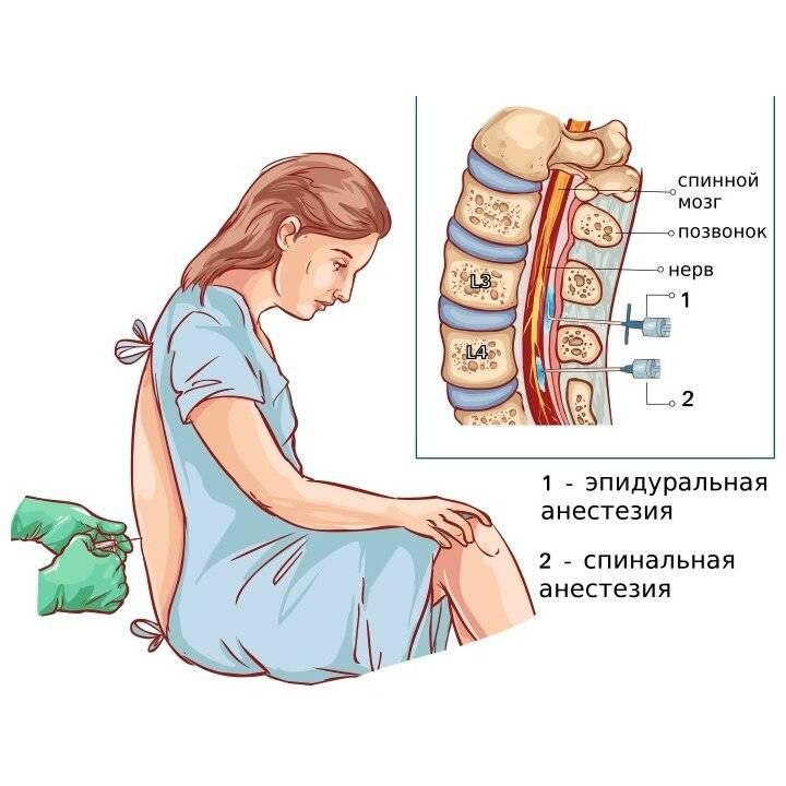Осложнения после спинальной анестезии