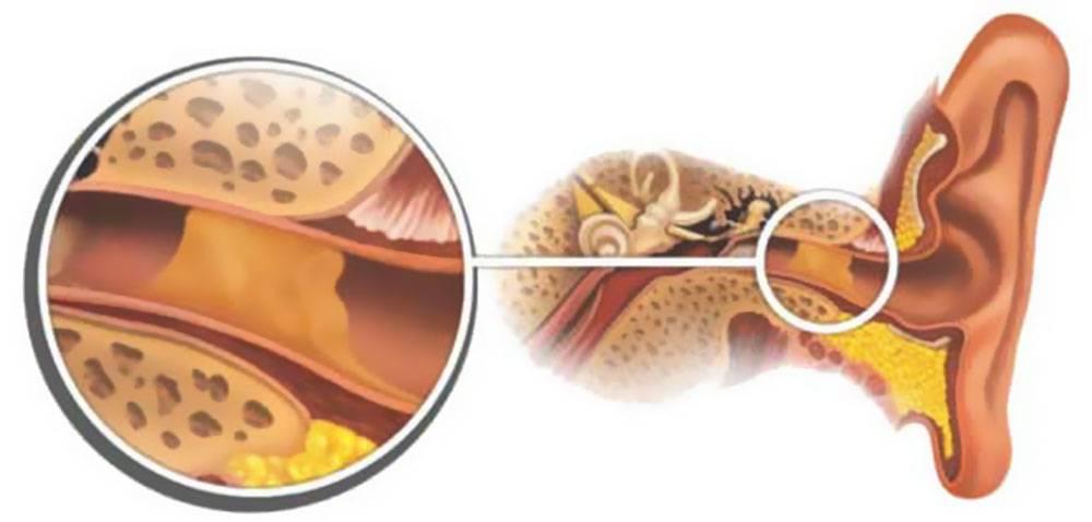 Серная пробка в ухе у ребенка — причины появления, симптомы, способы профилактики