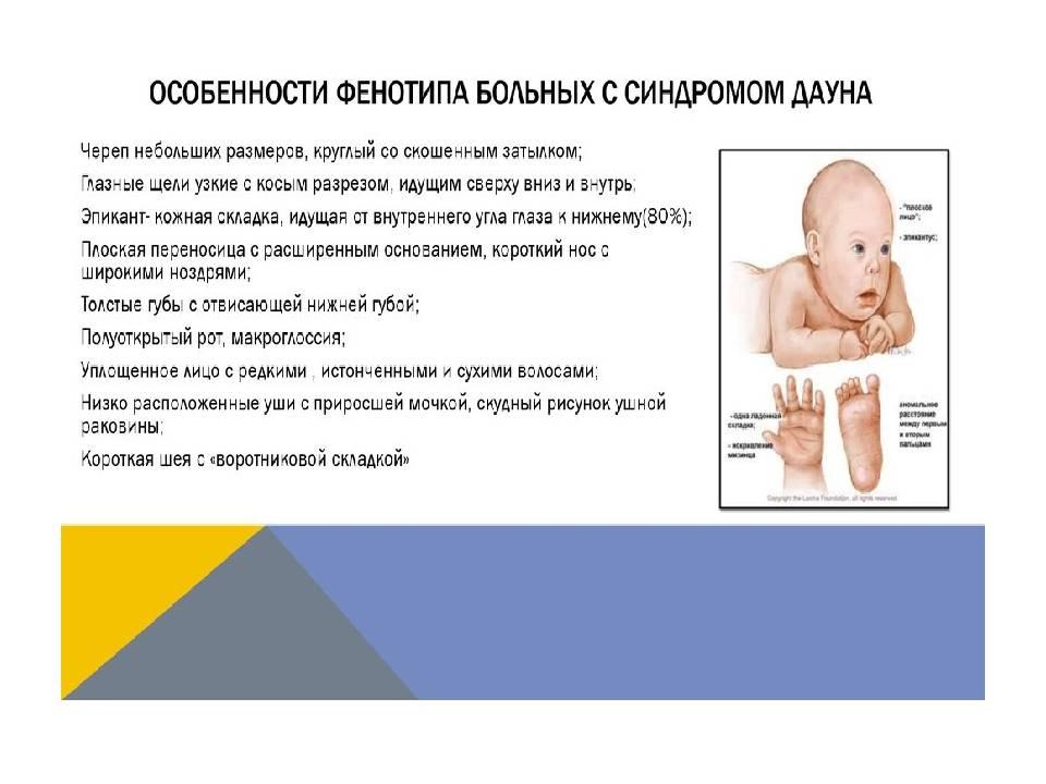 Помощь детям с генетическими нарушениями