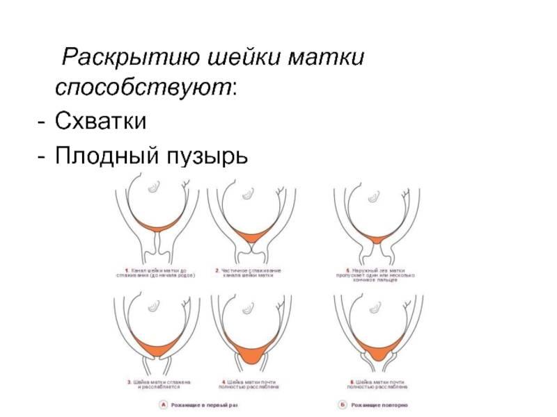 Как ускорить раскрытие шейки матки перед родами в домашних условиях: «мужетерапия» и упражнения
