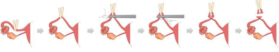 Перевязка маточных труб: преимущества и недостатки, осложнения, послеоперационный период