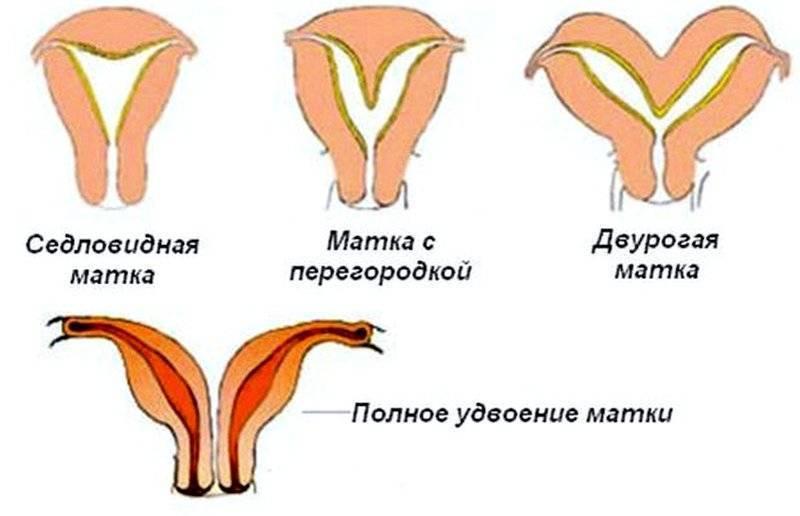 Эндометриоз