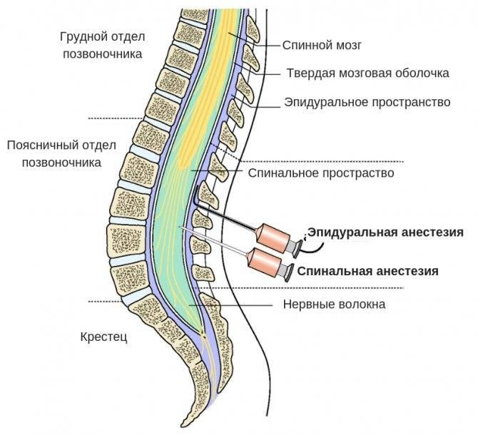 Эпидуральная и спинальная анестезия и общий наркоз при плановом кесаревом сечении. «за» и «против»