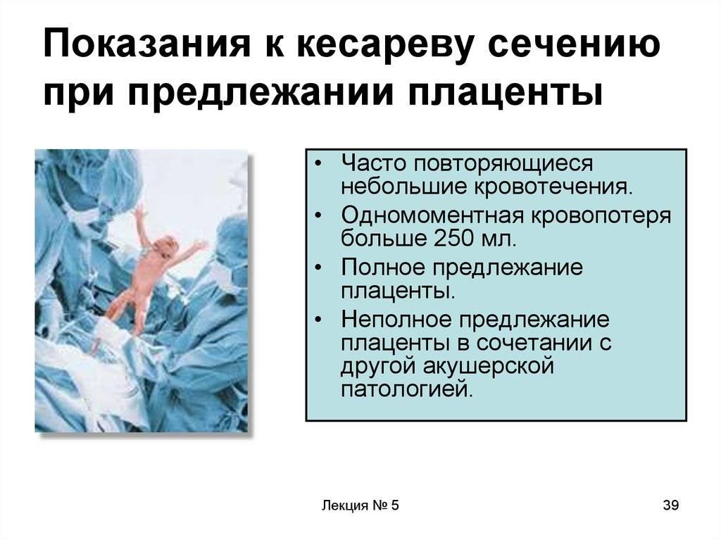 Роды при тазовом предлежании: показания к кесареву сечению и риски при естественном родоразрешении