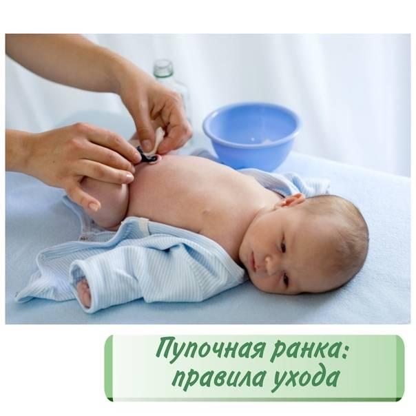 Инструкция по уходу и обработке пупка у младенца