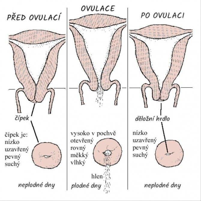Признаки рака шейки матки. симптомы рака шейки матки