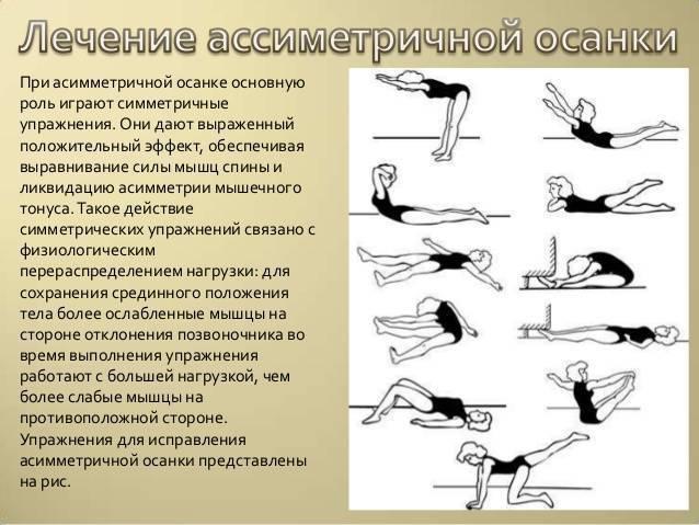Упражнения лфк при сколиозе