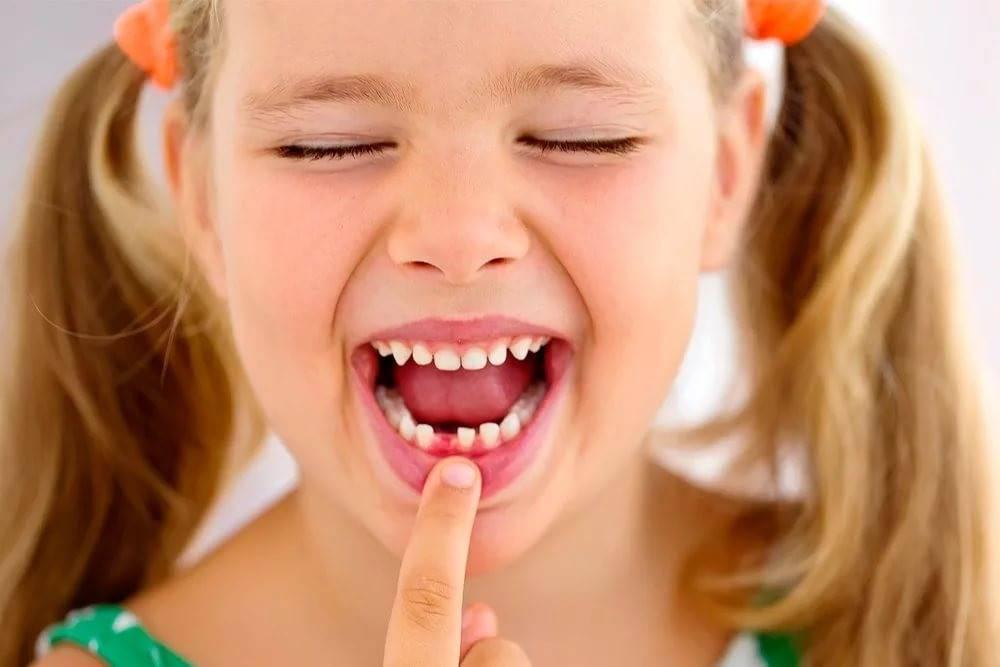 Лечение молочных зубов: этапы, способы и цены