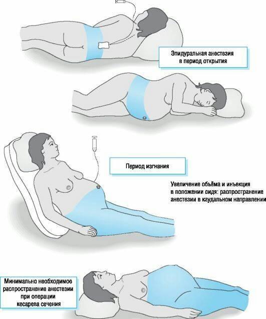Можно ли спать на животе после кесарева по мнению врачей