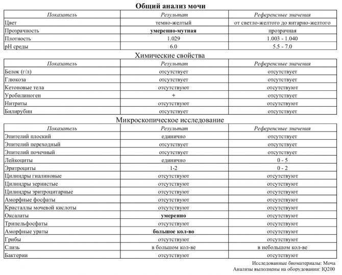 Соли оксалаты в моче: причины, симптомы оксалурии у ребенка