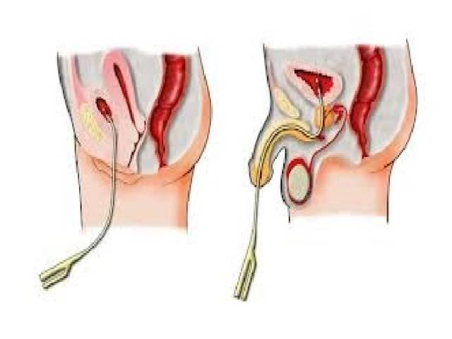 Катетер фолея для раскрытия шейки матки перед родами показания и порядок проведения процедуры