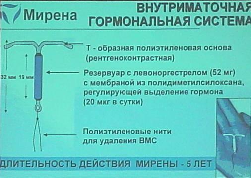 Внутриматочные спирали, введение и удаление (вмс)