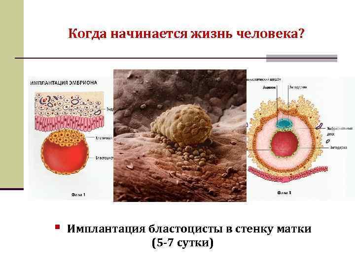 Плодное яйцо и беременность   патология развития плодного яйца