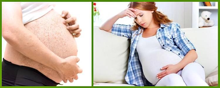 Длительная заложенность носа у беременных (ринит беременных) - лор клиника №1