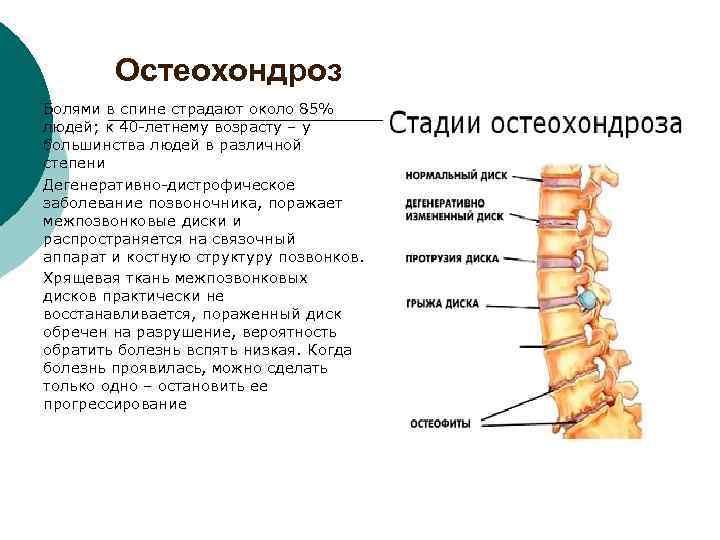 Остеохондрозы: стадии, симптомы по отделам позвоночника, лечение