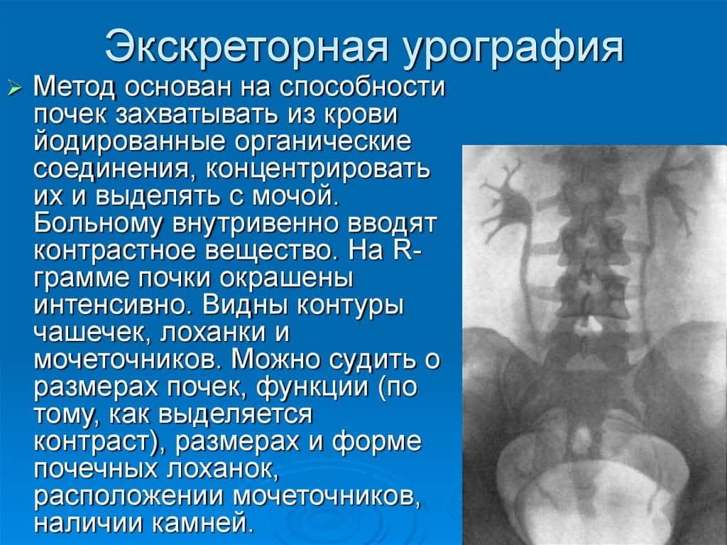 Микционная цистография мочевого пузыря в москве, проведение цистографии в клинике цэлт