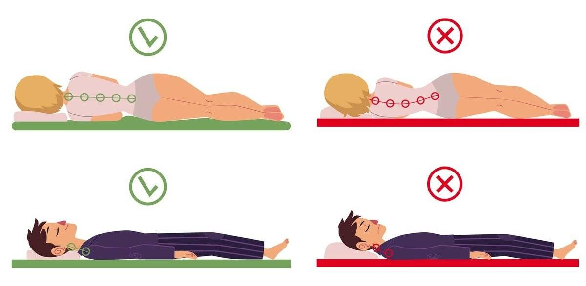 Позиционная терапия при храпе и сонном апноэ