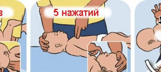 Подавился (механическая асфиксия). причины, первая помощь, возможные последствия :: polismed.com