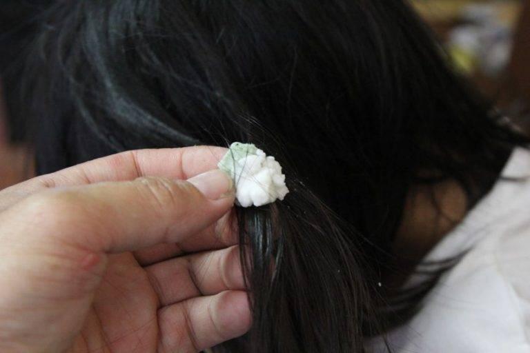 Липкая история: как удалить жвачку из волос быстро и просто