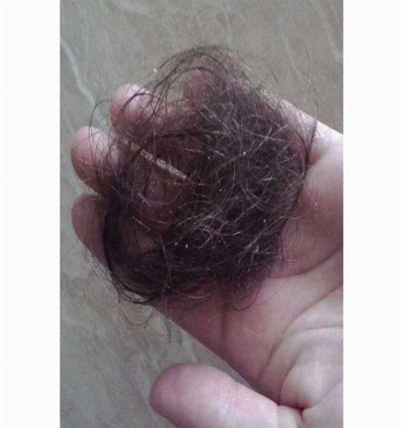 Как остановить выпадение волос после родов?