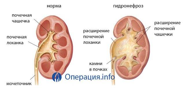 Брадикардия плода при беременности: насколько опасна и что делать - статья репродуктивного центра «за рождение»