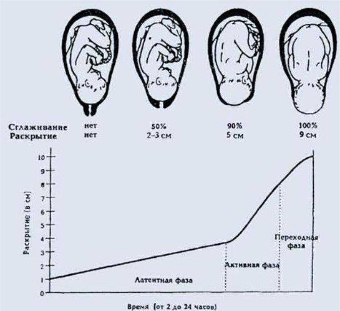 """Как ускорить раскрытие шейки матки перед родами в домашних условиях: """"мужетерапия"""" и упражнения   процесс   vpolozhenii.com"""