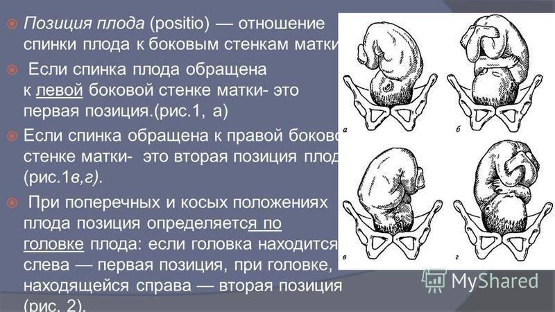 Тазовое предлежание: роды с особенностями