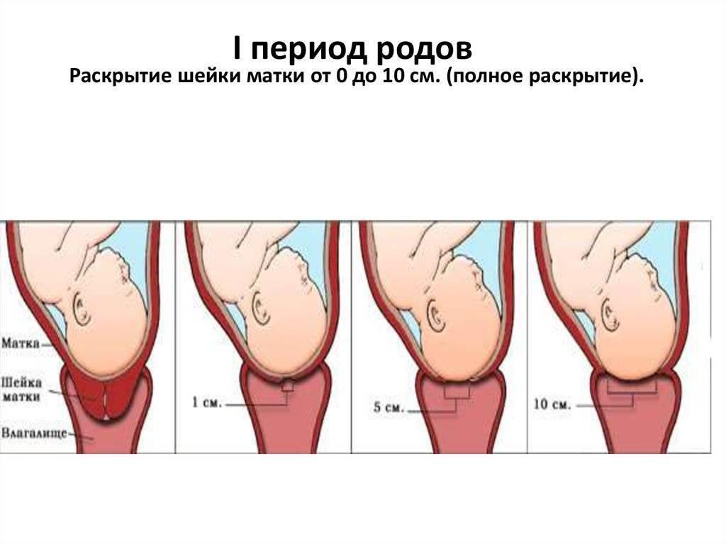 Готовность шейки матки к родам - роды