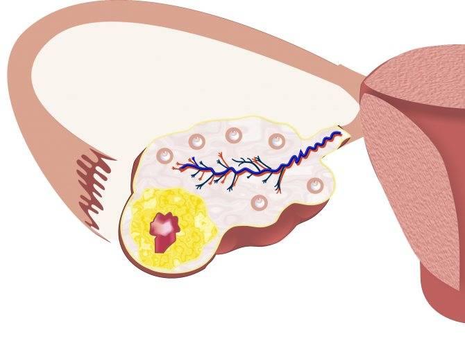 Коллагеноз -  заболевания соединительной ткани. симптомы коллагеноза. виды патологий соединительной ткани.