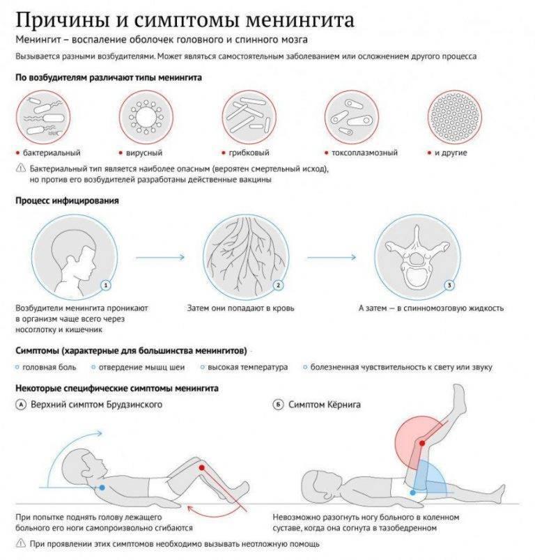 Менингит: симптомы и признаки у взрослых и детей