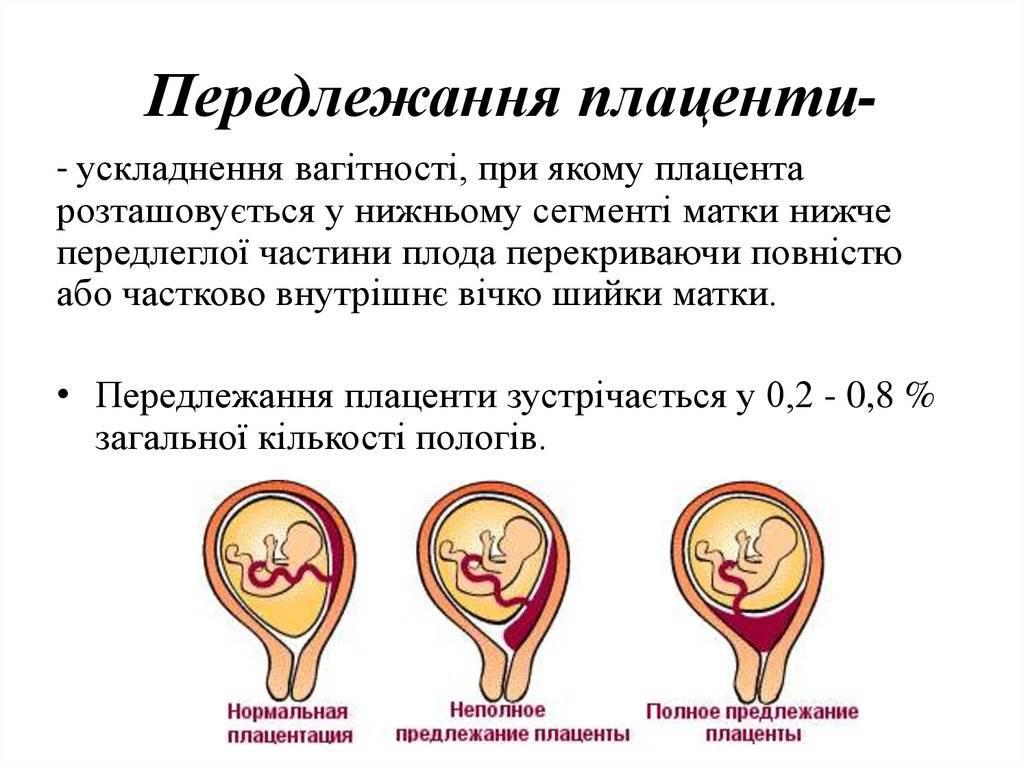 Чем грозит низкое предлежание плаценты при беременности: угрозы и лечение
