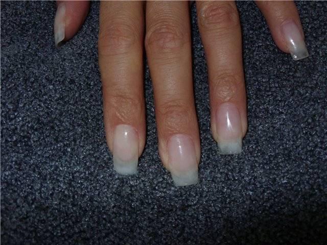 Можно ли во время беременности наращивать ногти
