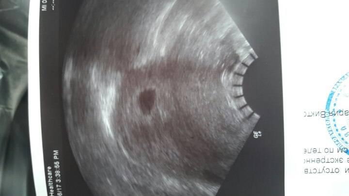 Выделения после переноса эмбрионов: причины, виды и что делать