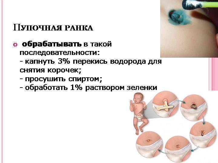 Обработка пупочной ранки у новорожденного ребенка: алгоритм, техника. обработка пупочной ранки новорожденного: что для этого необходимо и как проводится процедура.