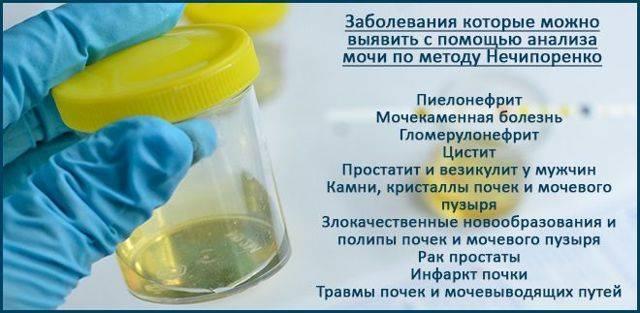Проба сулковича: исследования в лаборатории kdlmed