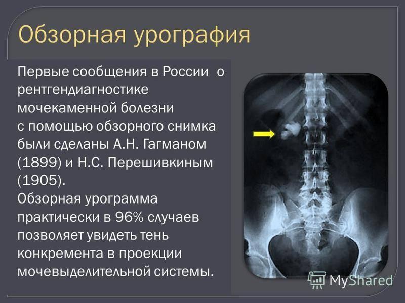 Внутривенная (экскреторная) урография