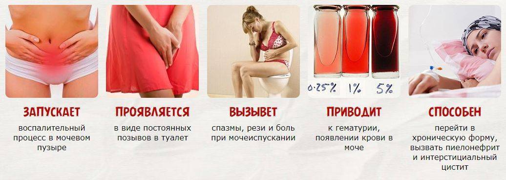 Боли при мочеиспускании при беременности | что делать, если болит при мочеиспускании при беременности? | лечение боли и симптомы болезни на eurolab