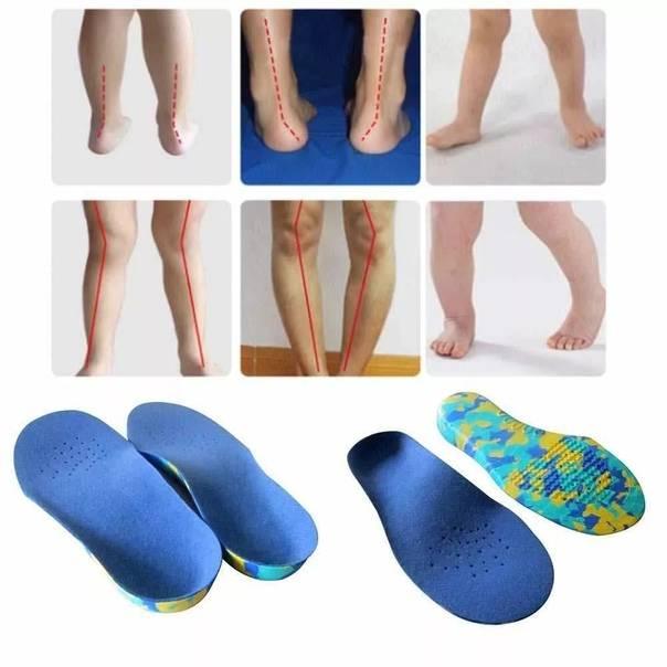 Как выбрать ортопедические стельки с супинаторами для детей при плоскостопии?