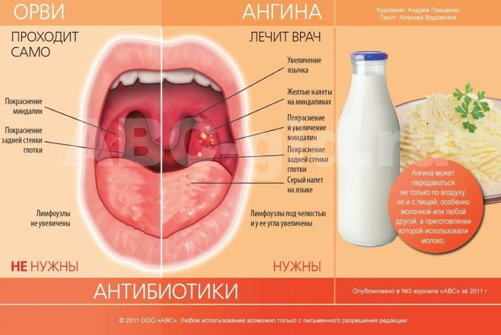 Антибиотики при ангине у детей. антибиотики нового поколения