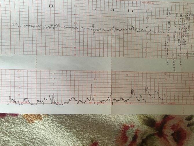 Ктг при беременности. кардиотокография плода: расшифровка
