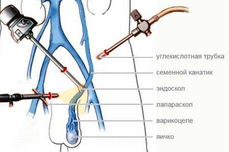 Варикоз яичек (варикоцеле): симптомы, причины, стадии варикоцеле, диагностика и лечение
