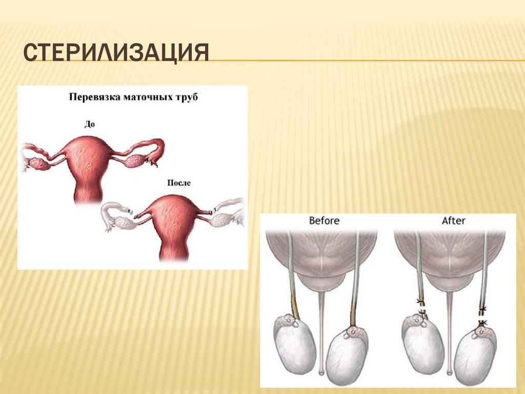 Перевязка маточных труб – цена на операцию женской стерилизации в санкт-петербурге