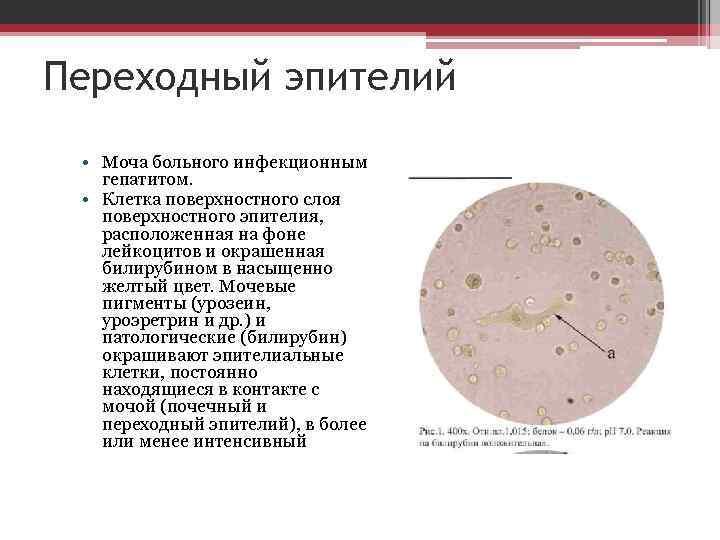 Эпителий в моче у ребенка (грудничка, подростка): плоский, переходный, почечный, норма, повышенный, единичный, анализы, причины отклонений, лечение