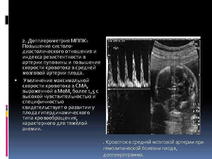 Скрининг ранней преэклампсии в i триместре беременности на основе комбинированной оценки материнского сывороточного плацентарного фактора роста и допплерометрии маточных артерий