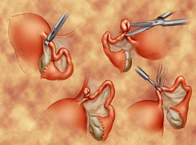 Перевязка маточных труб у женщин при кесаревом сечении: последствия, можно ли забеременеть?