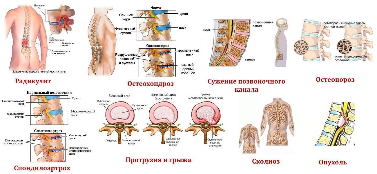 Остеохондроз и опухоль позвоночника: главные отличия